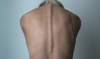 Photograph of a woman's back and spine